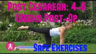 Safe Exercises After A Cesarean: 4-6 Weeks Post-Op 2 (Full Video)