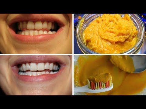 how-to-have-natural-white-teeth-in-4-minutes-with-turmeric-powder,-baking-soda-and-coconut-oil.