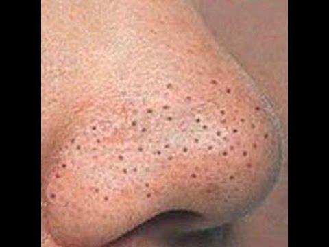 Крем от черные точки с лица