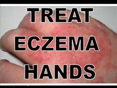 eczema on hands pictures