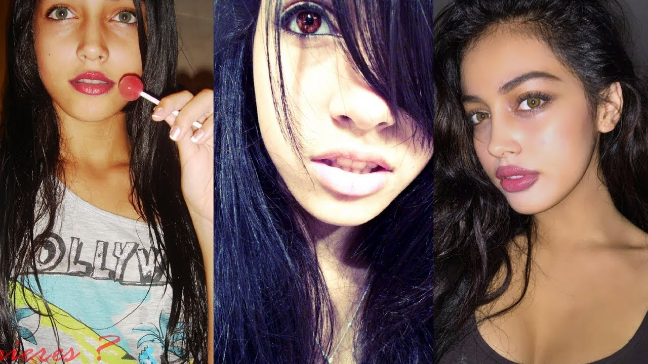 Cindy Kimberly (Wolfie Cindy) Before Lips Injection, Nose Job ● Side to  Side Photos