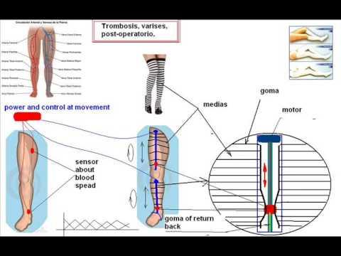 vein thrombosis