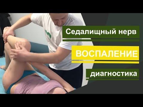 Седалищный нерв. Воспаление. Как определить седалищный нерв. How To Determine The Sciatic Nerve.