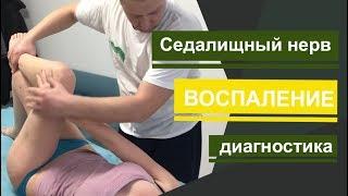 седалищный нерв. Воспаление. Как определить седалищный нерв. How to determine the sciatic nerve