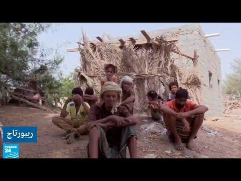 زواج الأقارب هو سبب تفشي العمى في قرية -المكفوفين- اليمنية