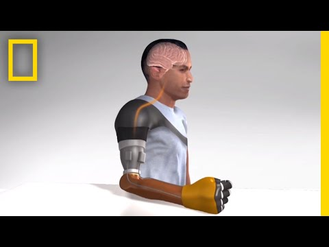 Sensation of Movement Recreated in Amputees' Robotic Arms   National Geographic