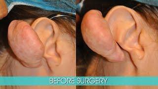 EXTENSIVE KELOIDS FROM EAR PIERCING IN CAUCASIAN WOMEN - DR. TANVEER JANJUA - NEW JERSEY