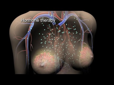 Breast Cancer  Treatment  Nucleus Health