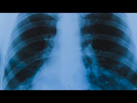 Коронавирусом сегодня заболели еще 16 амурчан. Растет число «немых» пневмоний