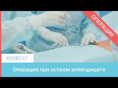 Доступным языком об осложнениях острого аппендицита