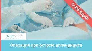 видео Острый аппендицит как наиболее распространенное хирургическое заболевание
