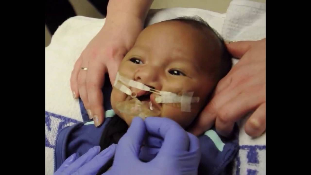 Newborn With Severe Head Molding Shows How Much Babies Go Through During Birth recommend