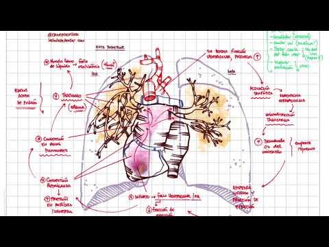 Por que se encharcan los pulmones