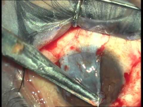 Pterygium Surgery with Fibrin Glue