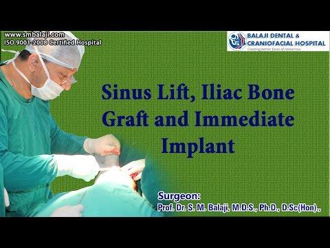 Sinus Lift, Iliac Bone Graft and Immediate Implant