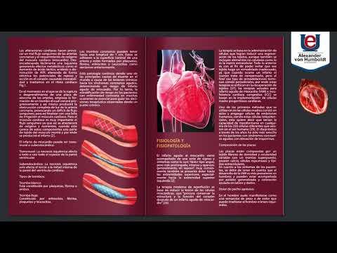 infarto-agudo-de-miocardio