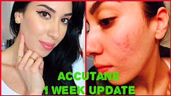 Accutane Journey | My 1 week UPDATE !!!! Results & Side Effects