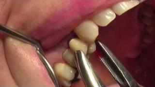 Dr. Biagio Di Dino, dentista: estrazione di dente