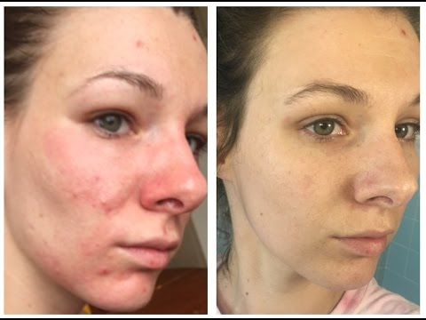 hqdefault - Aspirin And Water For Acne