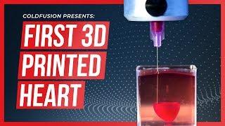 World First - 3D Printed Human Heart!