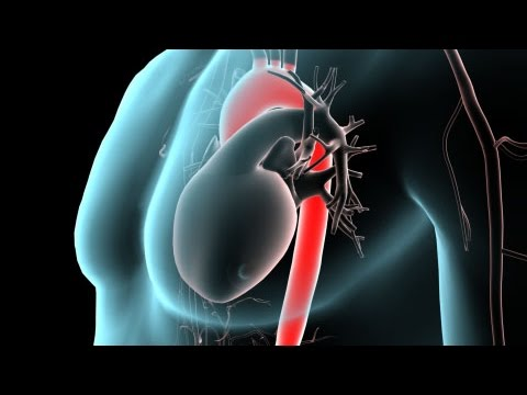 Anatomy of the Aorta - YouTube