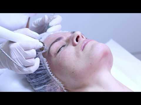Jak wygląda zabieg mikronakłuwania skóry EPN?