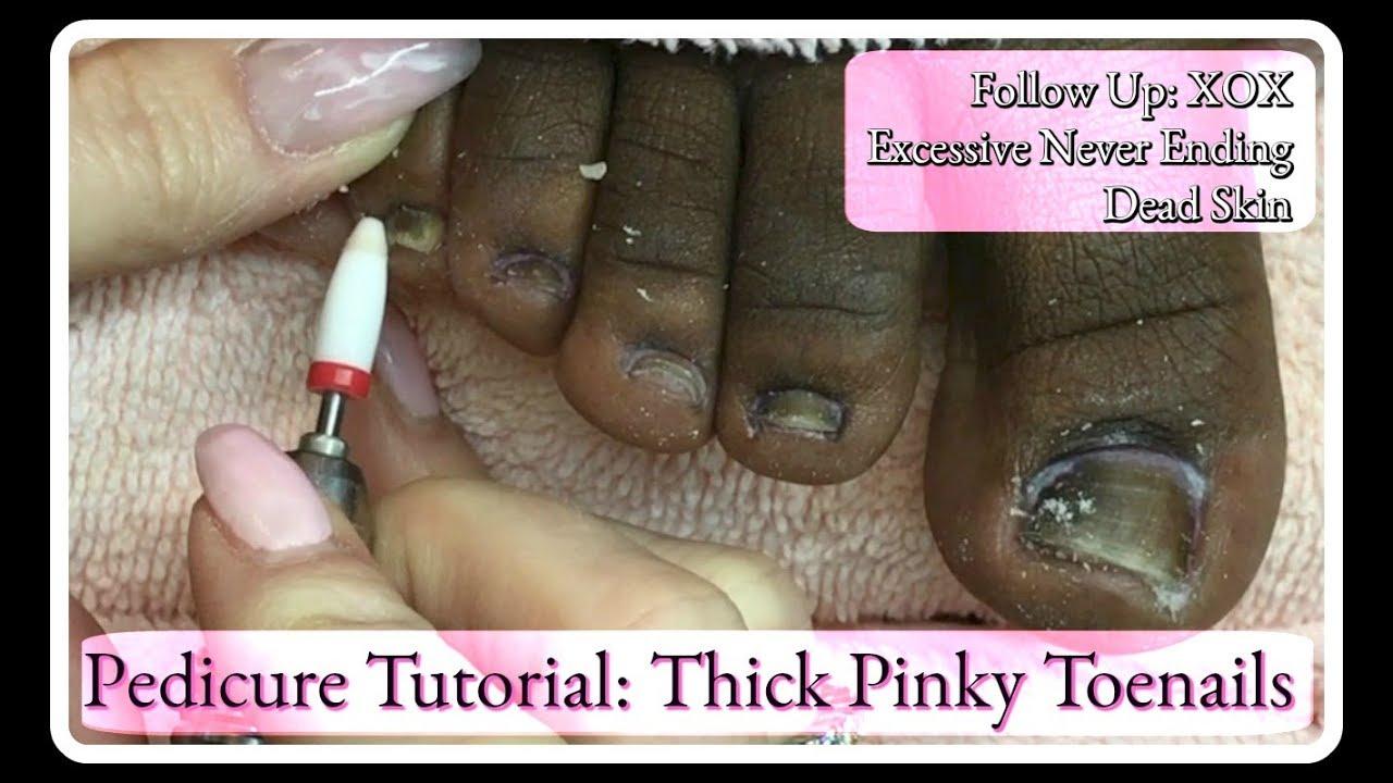 👣Excessive Never Ending Dead Skin Follow Up Pedicure Tutorial E ...