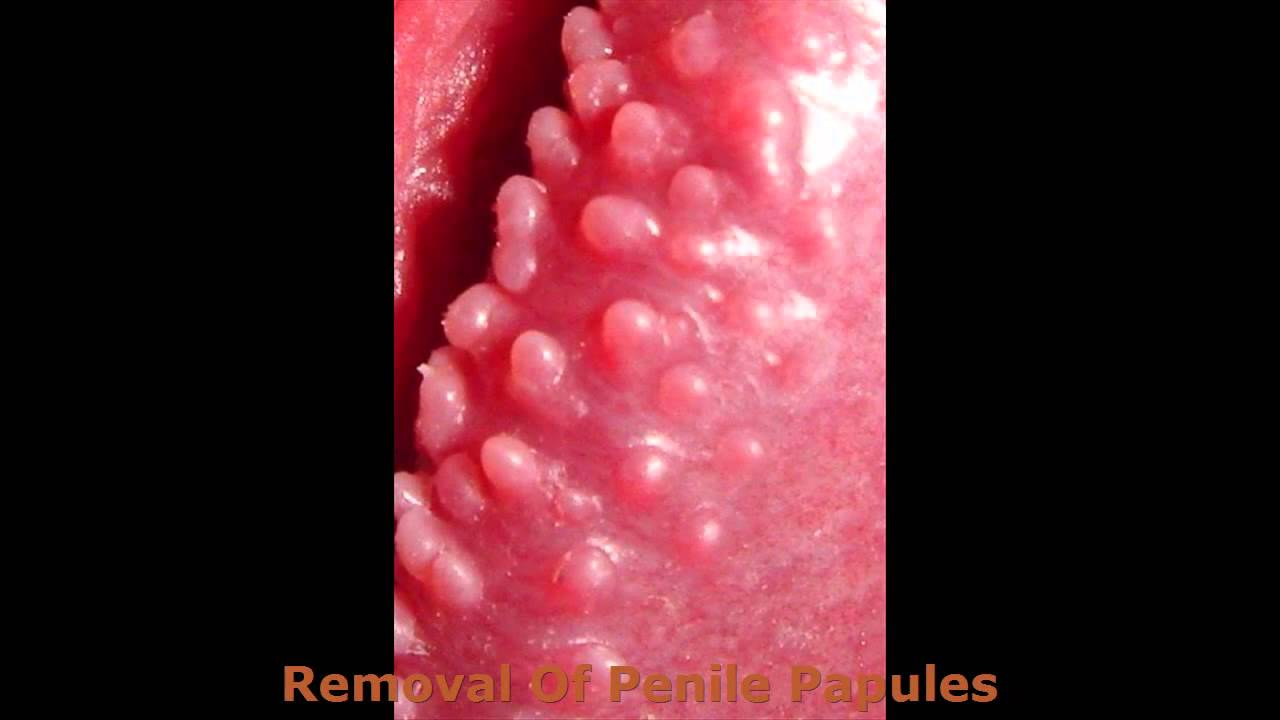 is pearly penile papules bad
