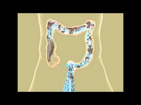 Colon Hydrotherapy in Pune | Constipation Treatment | Piles Treatment