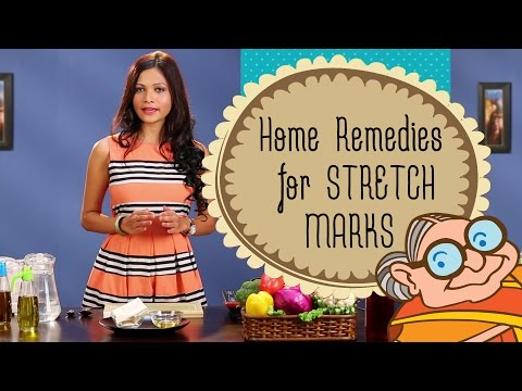 How To Remove Stretch Marks Permanently With Natural Home Remedies | Pregnancy Stretch Marks Removal