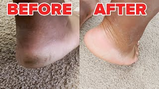 We Used A Foot Peeling Mask For The First Time