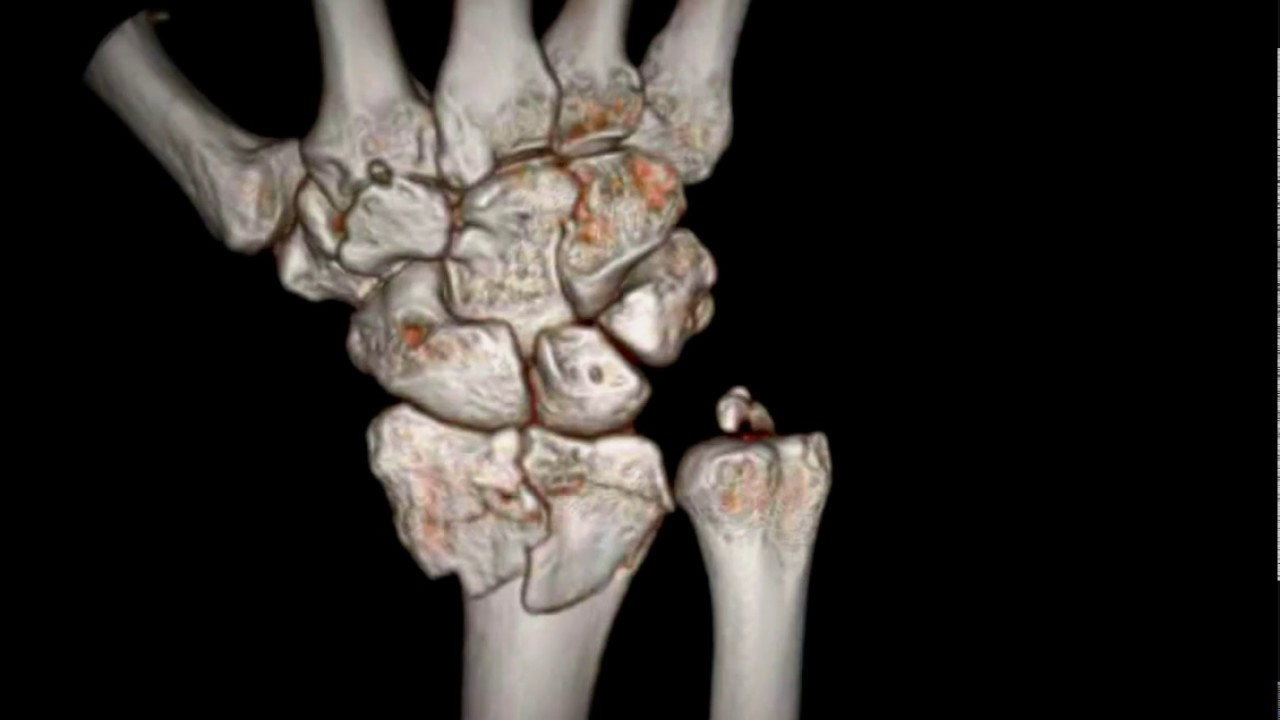 Distal radius intraarticular fracture and ulnar styloid process ...