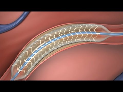 Absorbable Stent
