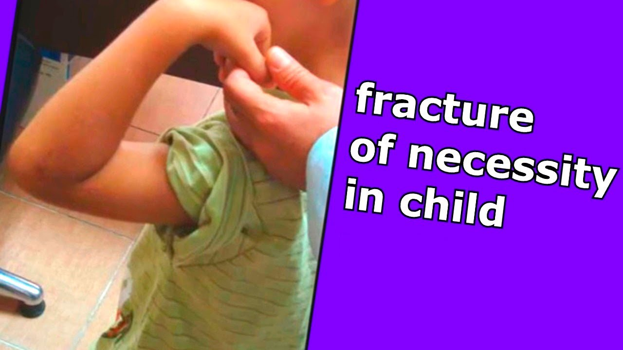 Lateral Condyle Fracture –In Child
