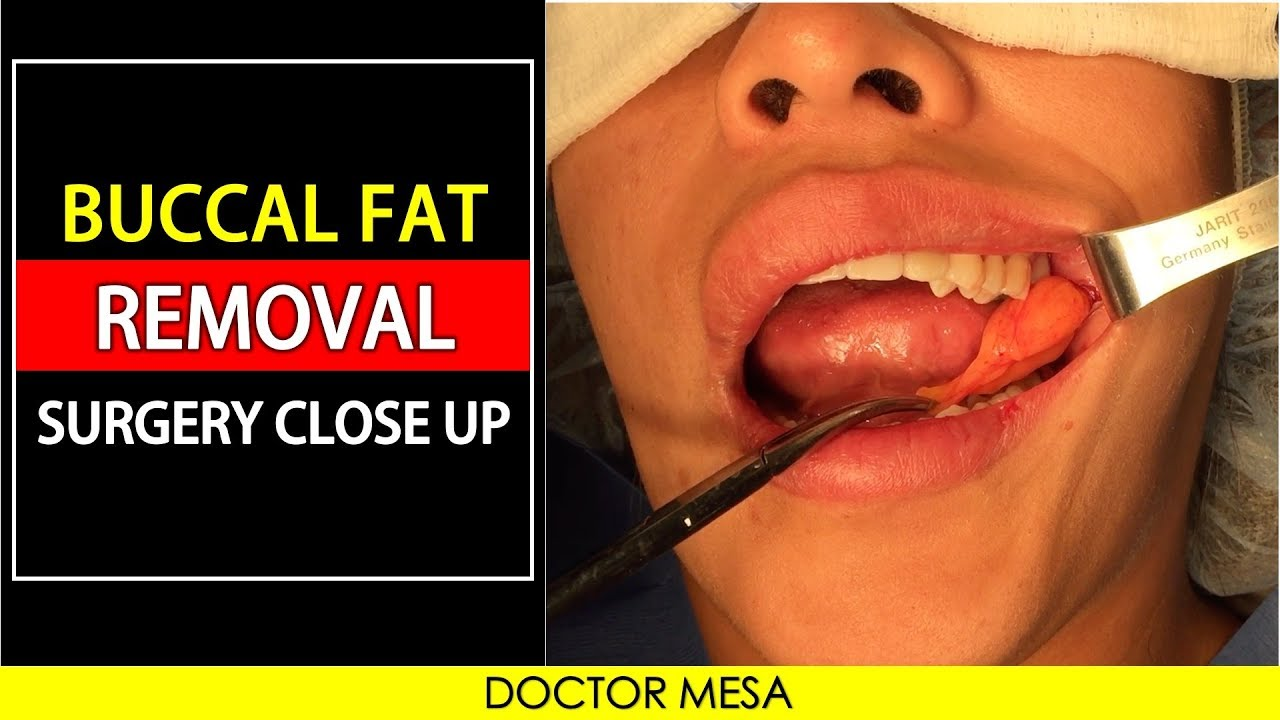 Bucal Fat Removal 16