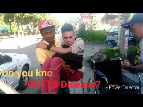 Do you Know Potts Disease?