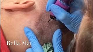 Scalp Micropigmentation During