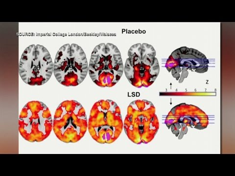 LSD study shows evidence of higher level of consciousness