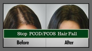 HOW TO STOP HAIR FALL NATURALLY | How to stop hair loss | HAIR CARE ROUTINE FOR PCOS/PCOD