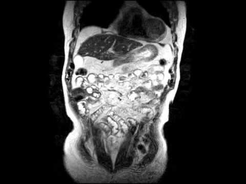 Диффузные изменения печени : причины и лечение диффузных