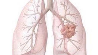Rak płuc leczenie