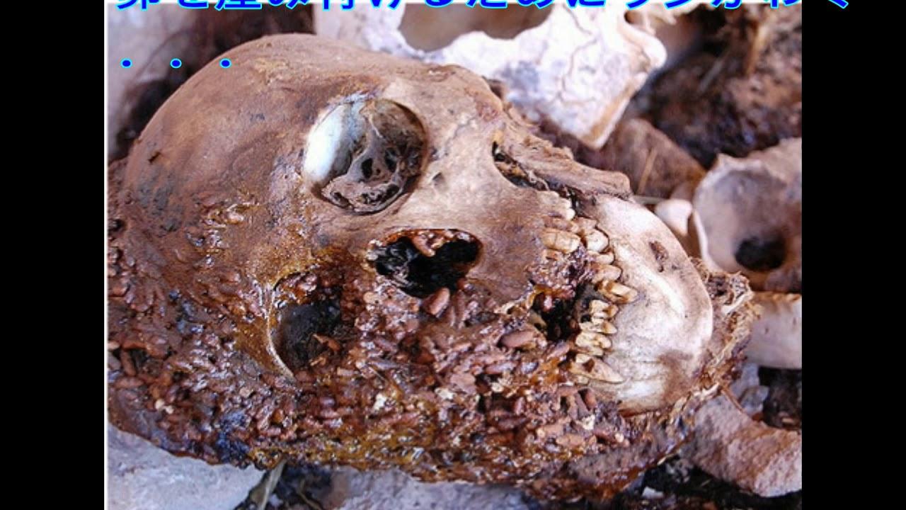 陰部にウジ虫がわいた男性の画像 - YouTube