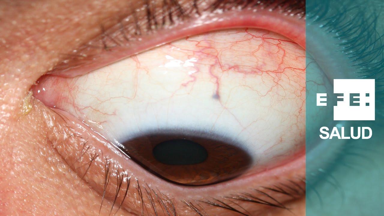 19ac74d693 La solución al queratocono de los ojos - YouTube