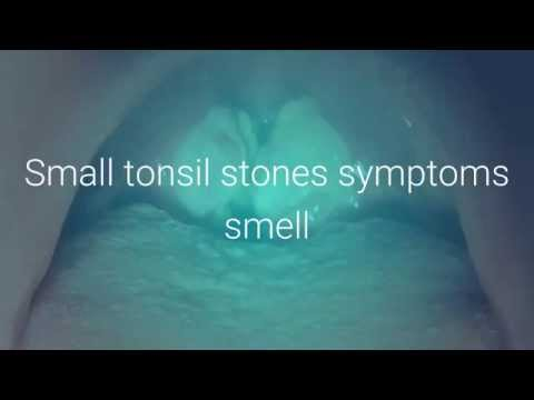 how to clean my tonsil stones without gagging