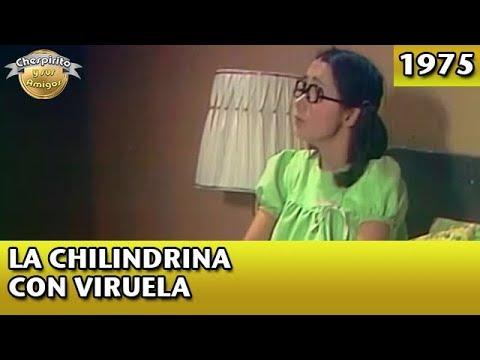 El Chavo   La Chilindrina Con Viruela (Completo)