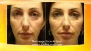 San Diego Thermage Non-Surgical Skin Tightening Thumbnail