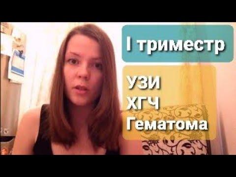 Беременность I триместр. ХГЧ, Анализы, УЗИ, скрининг PRISCA, тонус, ретрохориальная г.