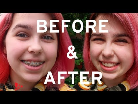 Braces OFF! Before & After | RadioJH Audrey