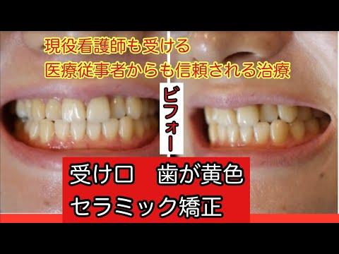 受け口気味で笑った時に上の歯がみえづらく、下の歯ばかりが見えてしい悩んでいました