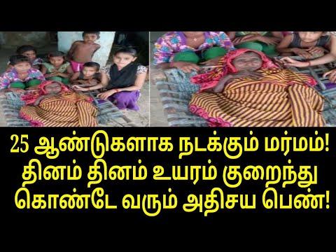 ஆச்சர்யம் ஆனால் உண்மை! உயரம் குறைந்து கொண்டே வரும் பெண்!   Tamil Trending News   Tamil News
